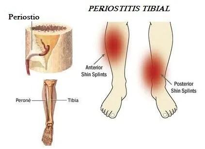 Periostitis tibial: Consejos para prevenirla.