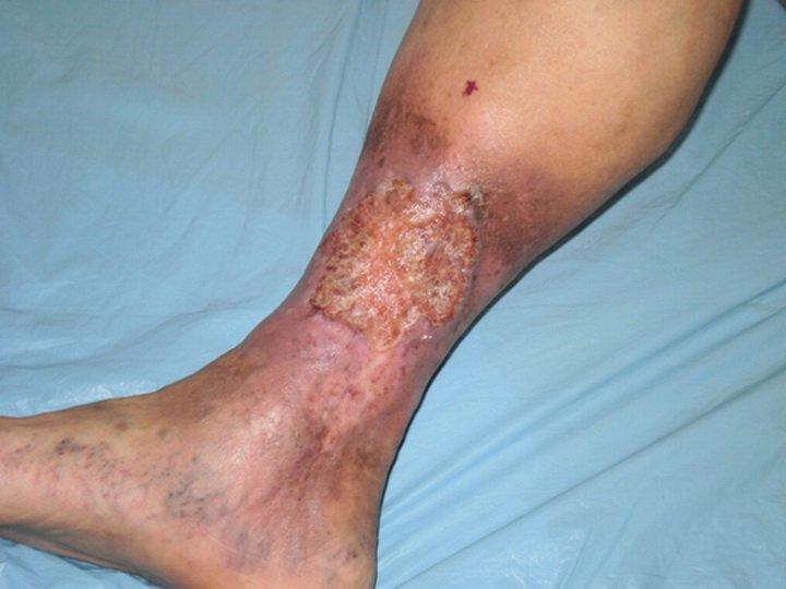 cauzele varicozelor varicoz venele de varicoase bolnave