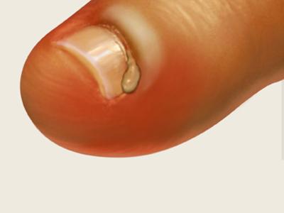 Уколола палец нарывает что делать