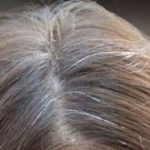 Home Remedies to Stop Gray Hair
