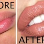 How to Make Your Lips Bigger?
