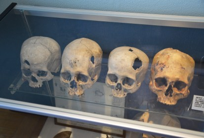 Peruvian skulls at the International Museum of Surgical Science in Chicago