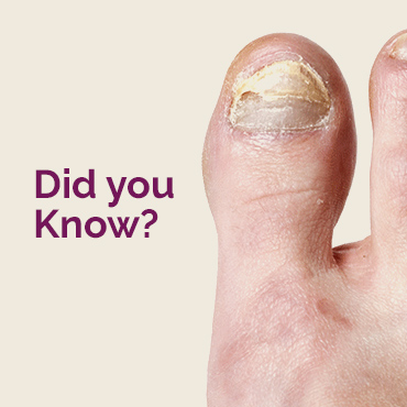Facts on nail fungus treatment