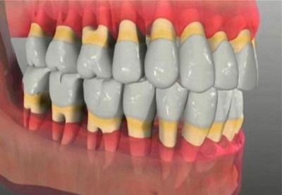 рецессия десны - оголяются шейки и корни зубов