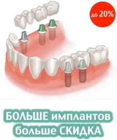БОЛЬШЕ имплантов - больше СКИДКА (до 20%)- 240x288