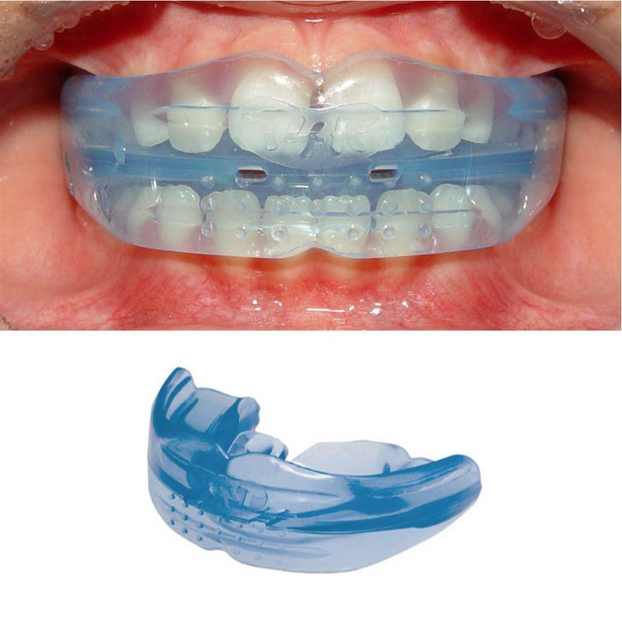 ортодонтические каппы и трейнеры