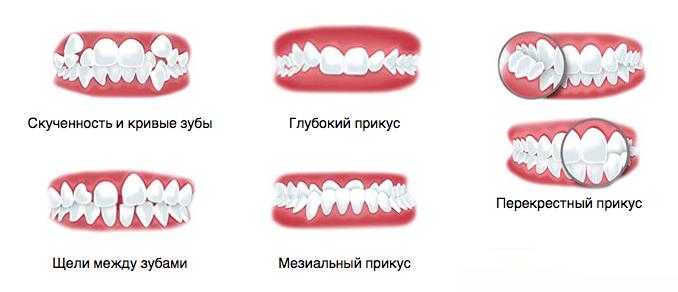 varienty-prikusov-kotorye-ispravlyaet-sistema-inkognito