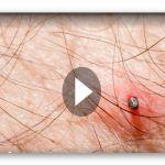 Zahl der Woche: 58 Vorsicht Zeckenstich: FSME-Erkrankungen nehmen zu