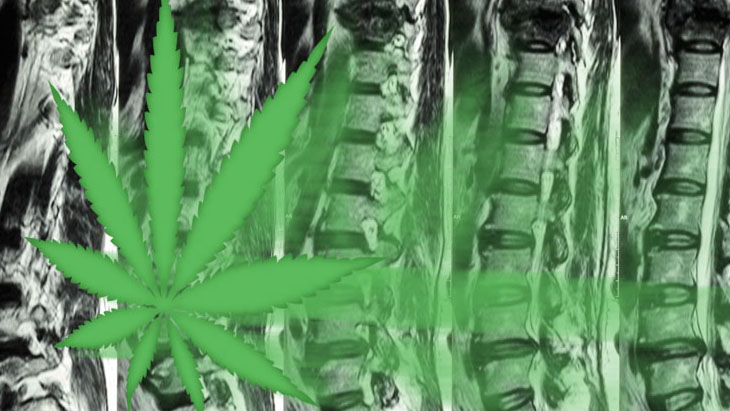 Marijuana and Back Pain