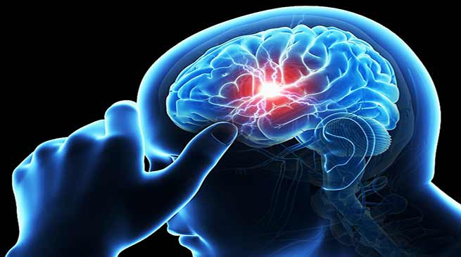 Assam: Dr Malay calls for brain stroke  free Kokrajhar