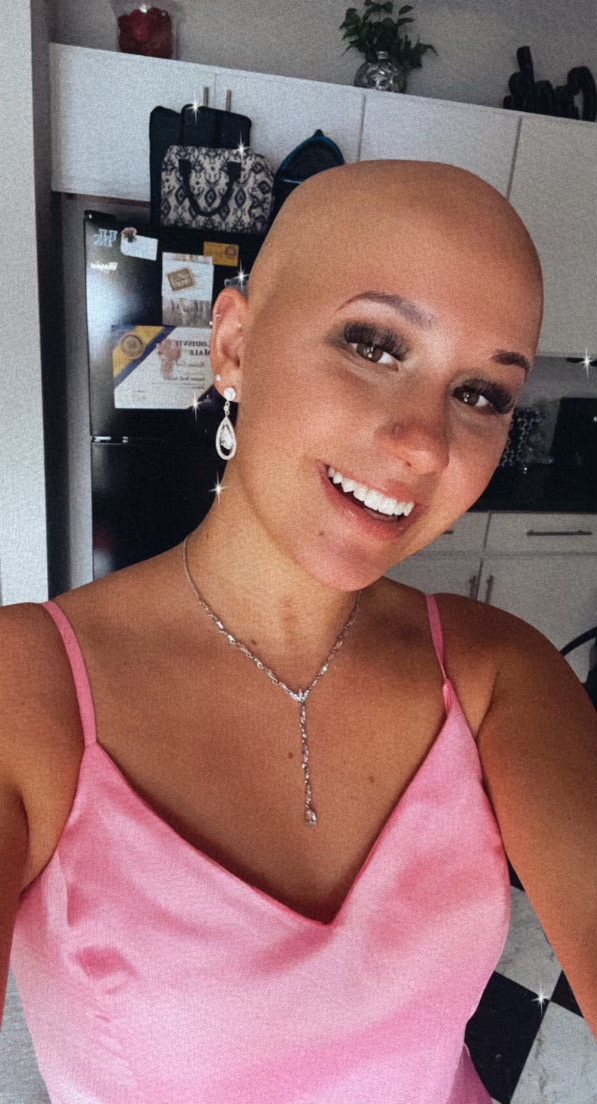 alopecia, baldness, auto immune, brave, teen girls with alopecia, beautiful with Alopecia, living bold with alopecia, living beautiful with Alopecia