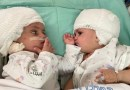 Separan a dos gemelas unidas por la cabeza tras una operación de 12 horas en Israel