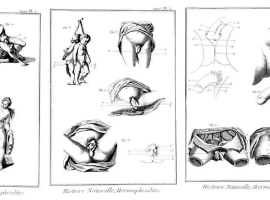'A Temporary Member': 'Hermaphrodites' and Sexual Identity in Early Modern Russia