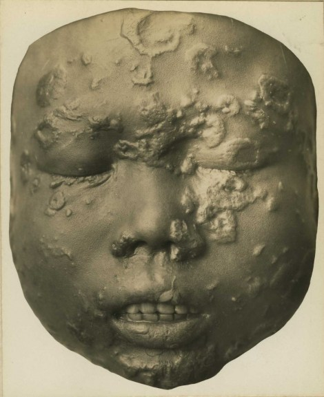 """Child Suffering from Yaws, Otis Historical Archives of """"National Museum of Health & Medicine"""" (OTIS Archive 1)"""