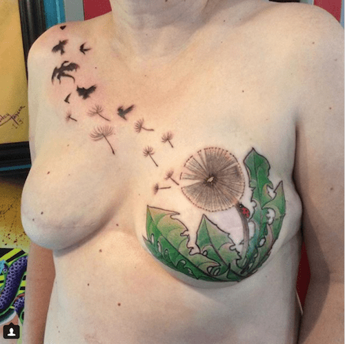 Breast tattoos post mastectomy a compelling slide show for Can you get a tattoo before surgery