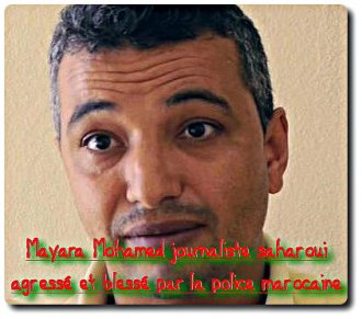 Agressé par la police marocaine, le juste combat du journaliste sahraoui Mohamed Mayara – POPULI-SCOOP : Info citoyenne & Actu critique