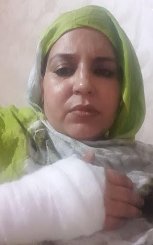 Sultana Jaya entre varios heridos por agresión agentes marroquíes en Bojador ocupada | DIARIO LA REALIDAD SAHARAUI
