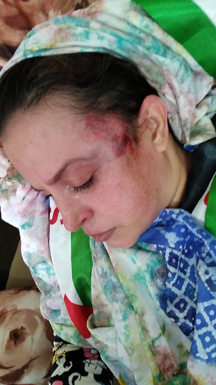 Brutal agresión marroquí contra las activistas saharauis Sultana Khaya y Elwaara Khaya | Sahara Press Service