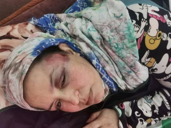 ONG saharaui condena los crímenes de las fuerzas de ocupación marroquí contra la activista Sultana Sidbrahim Jaya y su familia | Sahara Press Service