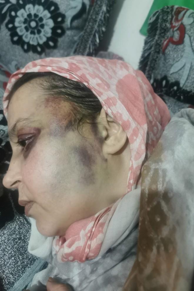 Agosto saharaui: No hay derechos humanos para Sultana Jaya | Contramutis