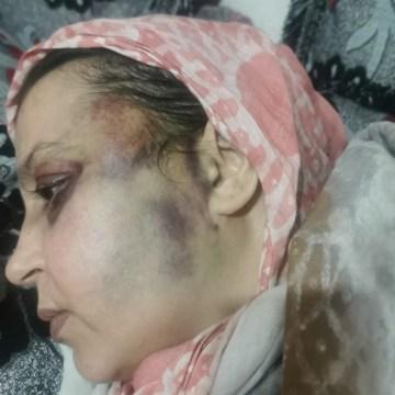 Agosto saharaui: No hay derechos humanos para Sultana Jaya   Contramutis