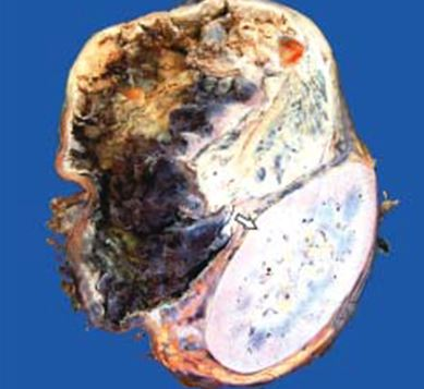 Read more about the article Pheochromocytoma: Morphology, Clinical features, Complications