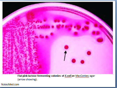 Read more about the article Escherichia coli: Morphology, Lab diagnosis-NotesMed