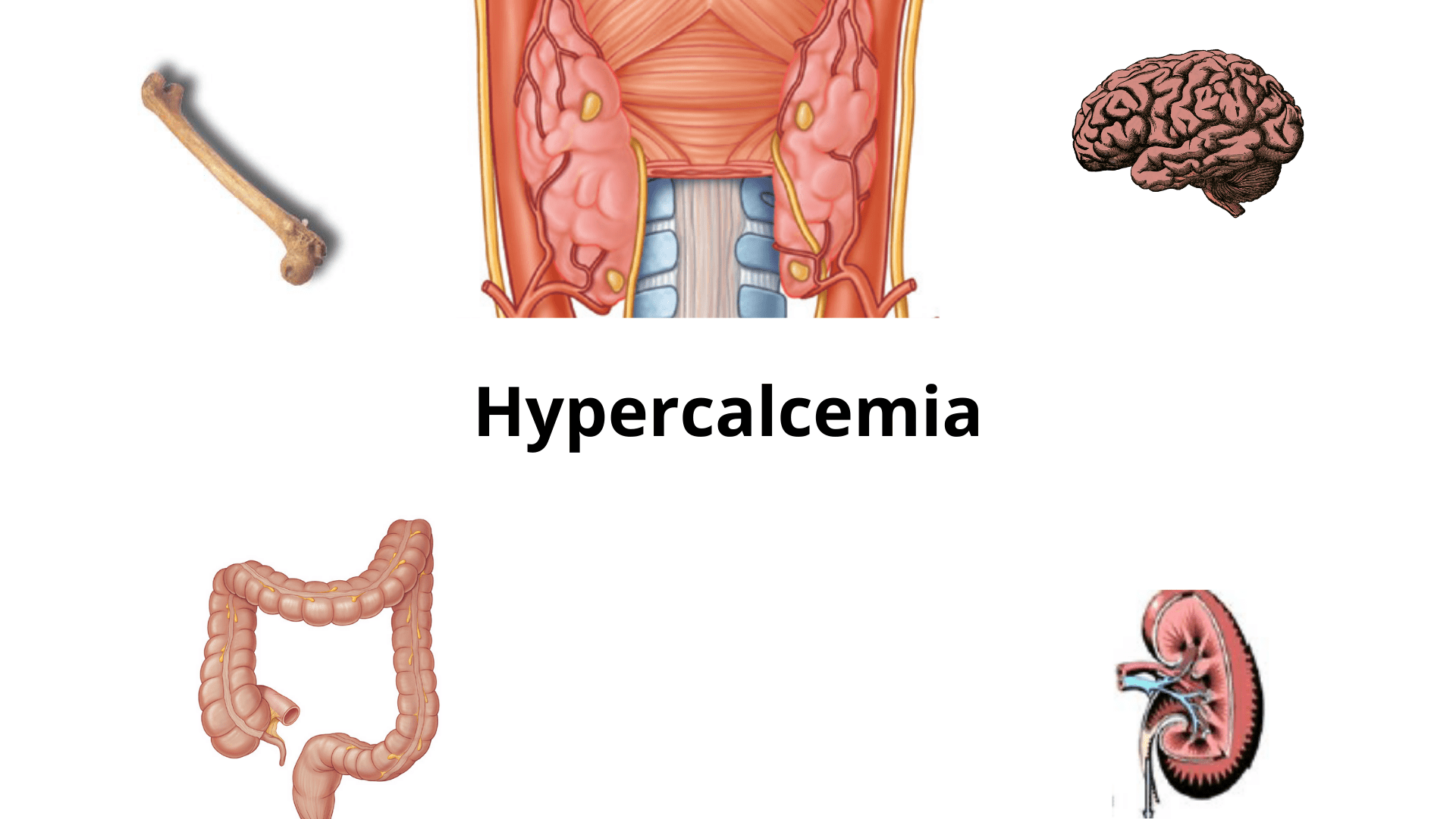 Read more about the article Hypercalcemia: Treatment, Pathophysiology, Symptoms