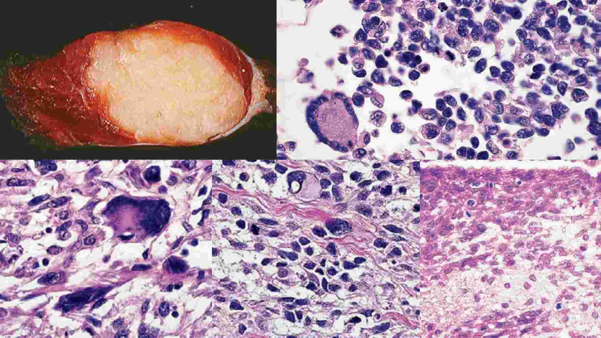 You are currently viewing Rhabdomyosarcoma: Causes, Diagnosis, Treatment- NotesMed
