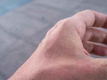 Carola's sunburnt hand, Da Nang, Vietnam (2017-06)