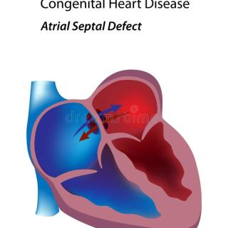 What Is Atrial Septal Defect;History,Diagnosis And Treatment