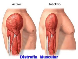 What Is Muscular Dystrophy;Diagnosis,Treatment And Pathology