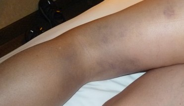 Accident Bruised leg. Spirit Lake Paramedics