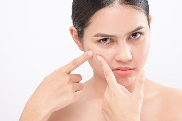 Top Tricks To Get Rid Of Acne Scars