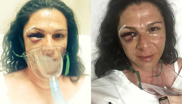 La Senadora Ana Gabriela Guevara, el día que fue golpeada.