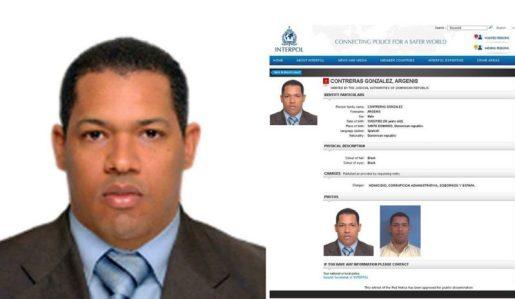 Hermetismo por deportación de sobre deportación Argenis Contreras