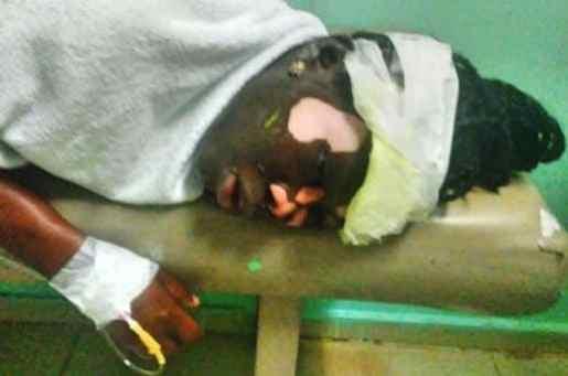 Dajabón: Haitiana lanza aceite caliente a otra