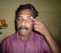 Sapru perdeu um dos olhos no acidente