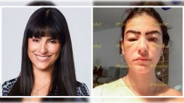 Liz-Gallardo desfigurada