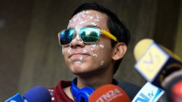Rufo Chacón víctim de represión policial en Venezuela