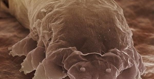 f7067fbd602227e1a142c38a47a74e8c - La rosácea podría estar causada por una bacteria presente en la cara