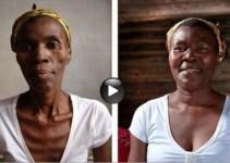 901250b7663e25ea6e0926b8ec942be1 - Un dramático video muestra los efectos que causa el sida