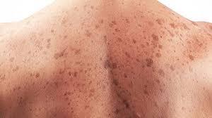 conoce medidas de prevención para el cáncer de piel