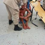 ATROPELAMENTO – Homem é atropelado embaixo da passarela em São Pedro da Aldeia