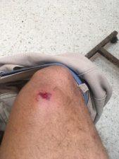Tres estudiantes heridos durante protesta en Navarrete