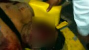 Muere hombre tras golpiza que le propinaron pobladores de Cuapiaxtla