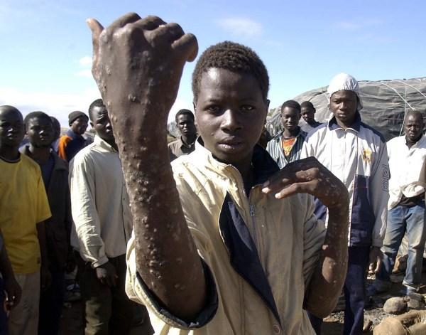 Condiciones ínfimas de vida y de salud de un muchacho maliense en Maghnia, oeste de Argelia, cerca de la frontera con Marruecos
