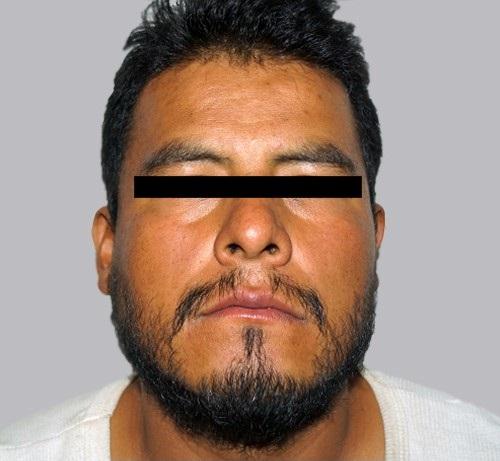 Fernando González, inculpado por el asesinato de Karen Esquivel y de Adriana Hernández (PGJEM)