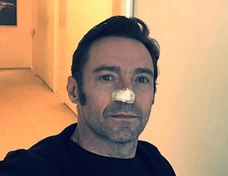 Hugh Jackman revela lucha contra el cáncer de piel