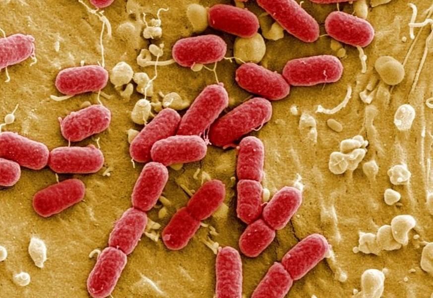 Un informe sobre resistencia antimicrobiana reveló que 25 mil personas mueren cada año en la UE a causa de las superbacterias (Reuetrs)